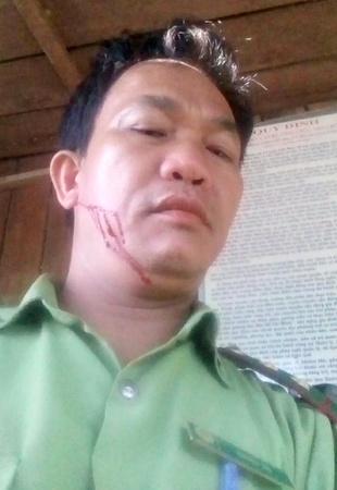 """Quảng Nam: Một kiểm lâm viên bị """"lâm tặc"""" hành hung, gây thương tích"""