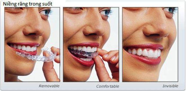 Hội thảo công nghệ niềng răng trong suốt, sử dụng máy in 3D
