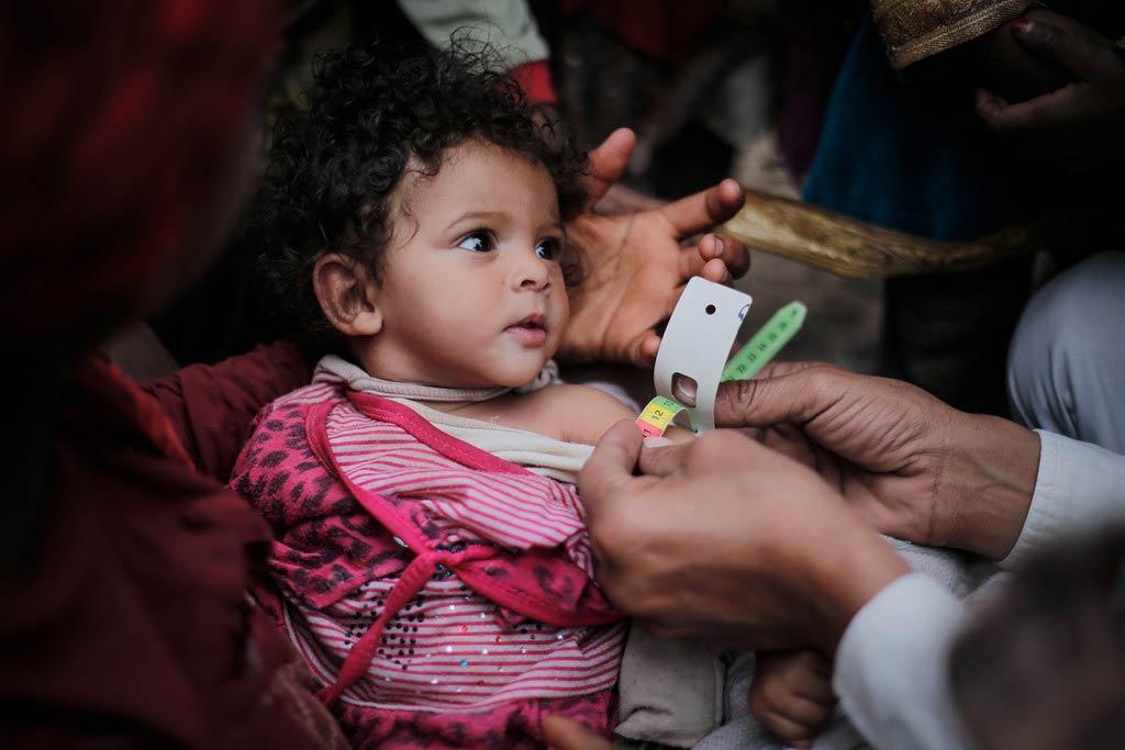 FAO báo động về nguy cơ tử vong do nạn đói trên thế giới