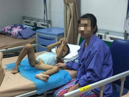 Vụ hàng chục trẻ em bị sùi mào gà ở Hưng Yên: Đừng lạm dụng nong tách bao quy đầu