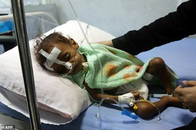 Hơn 11 triệu trẻ em Yemen cần được hỗ trợ nhân đạo khẩn cấp