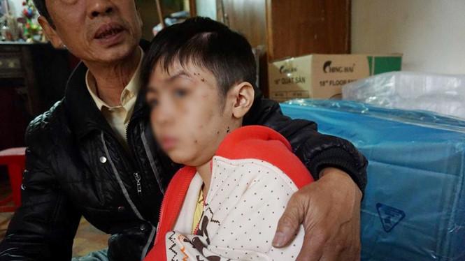 Vụ bạo hành trẻ em tại Hà Nội: Có thể phạt tới 3 năm tù giam