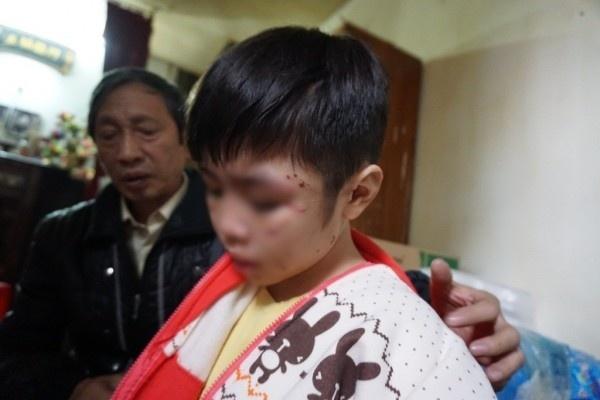 Hà Nội yêu cầu xử lý nghiêm vụ cháu bé bị bố đẻ và mẹ kế bạo hành
