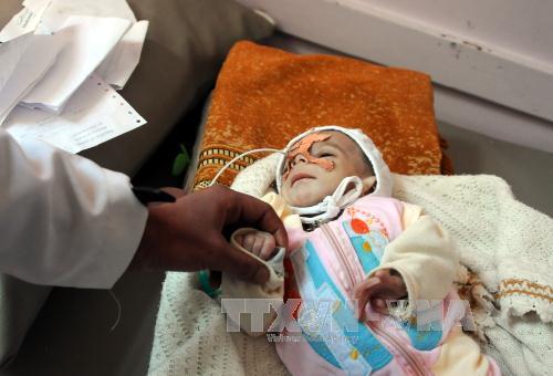 Liên hợp quốc kêu gọi quyên góp gần 3 tỷ USD cho Yemen