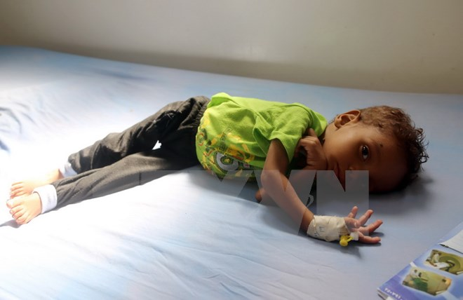 Hàng triệu trẻ em trở thành nạn nhân của xung đột vũ trang tại Yemen