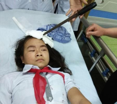 Yêu cầu xác minh, xử lý nghiêm vụ học sinh bị gây thương tích ở Hà Nam