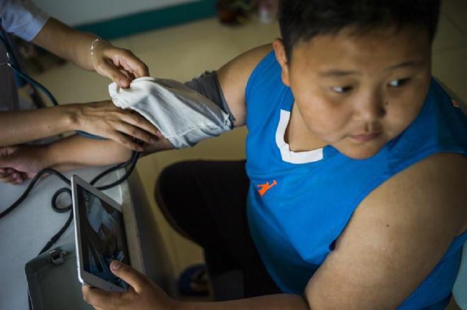 Đáng ngại tình trạng béo phì ở trẻ em khu vực châu Á – Thái Bình Dương