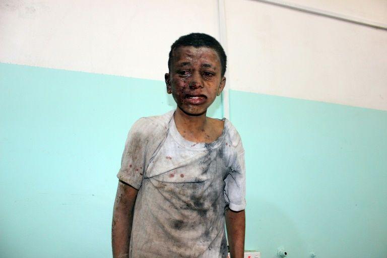 Tấn công đẫm máu tại Yemen: Ít nhất 29 trẻ em thiệt mạng