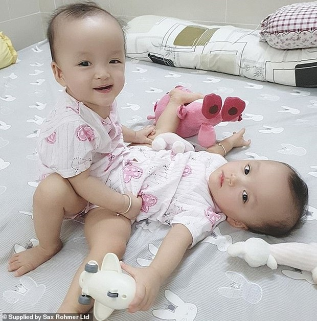 International press highlights operation to separate conjoined twins in Vietnam