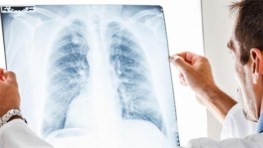 Lancement du projet Zero Tuberculosis Vietnam (ZTV)