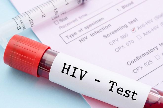 Un séminaire sur le sida et les hépatites virales à Hanoï