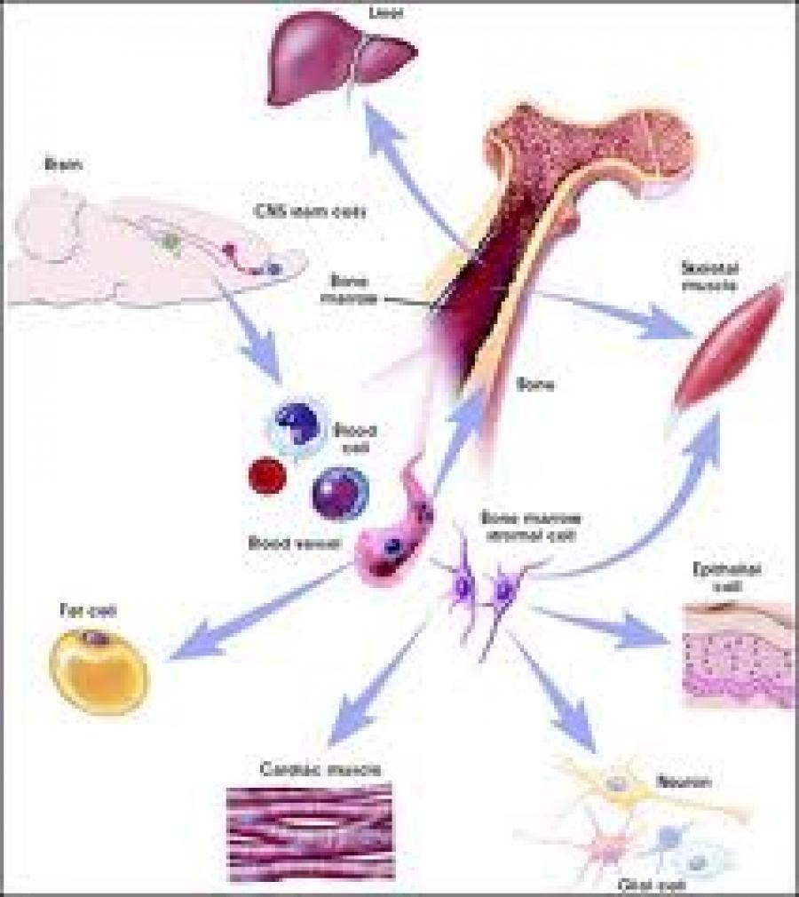 新方法有望抑制骨髓移植副作用