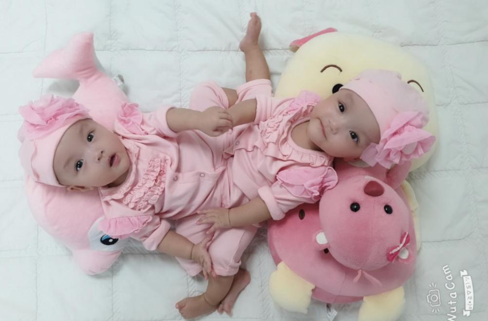 Mổ tách dính 2 bé gái tại Bệnh viện Nhi đồng TP Hồ Chí Minh
